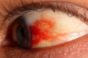 Диабетическая ретинопатия - стадии, лечение и профилактика.