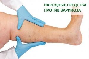 Народные средства против варикоза