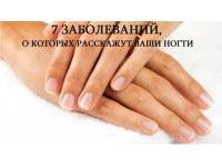 О каких заболеваниях расскажут ваши ногти?